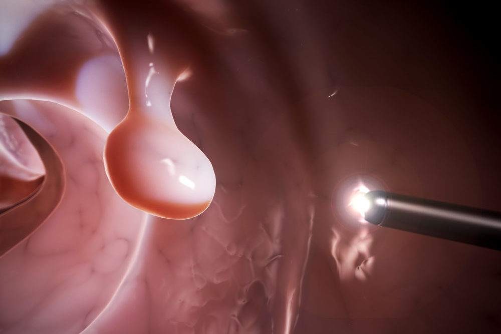 Colonoscopy rendering